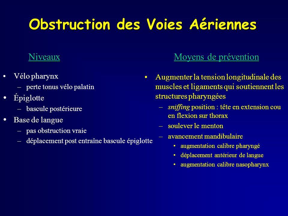 Obstruction des Voies Aériennes Vélo pharynx –perte tonus vélo palatin Épiglotte –bascule postérieure Base de langue –pas obstruction vraie –déplaceme