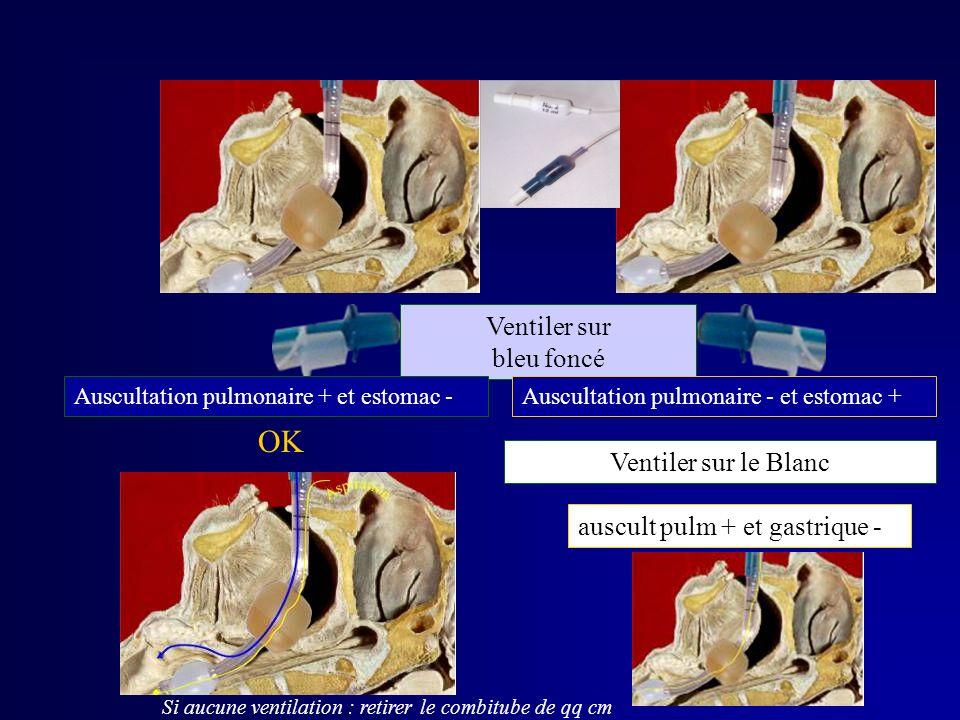 MISE EN PLACE Ventiler sur bleu foncé Auscultation pulmonaire + et estomac - Ventiler sur le Blanc Si aucune ventilation : retirer le combitube de qq