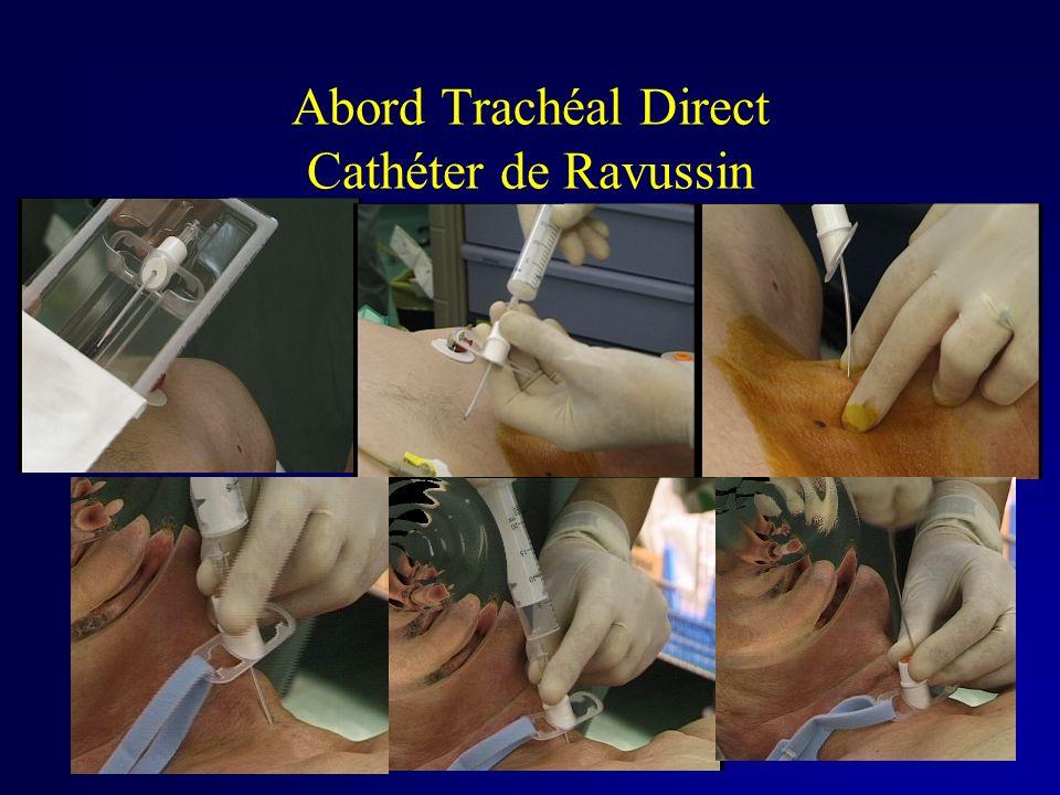 Abord Trachéal Direct Cathéter de Ravussin