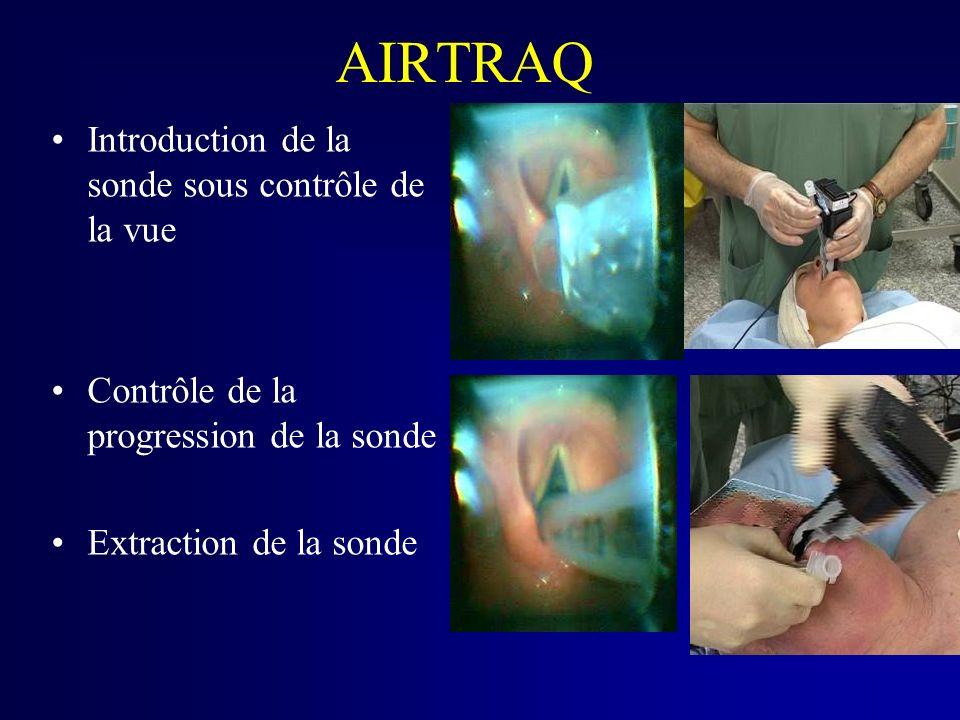 AIRTRAQ Introduction de la sonde sous contrôle de la vue Contrôle de la progression de la sonde Extraction de la sonde