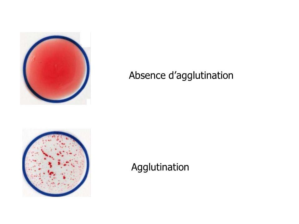 Absence dagglutination Agglutination