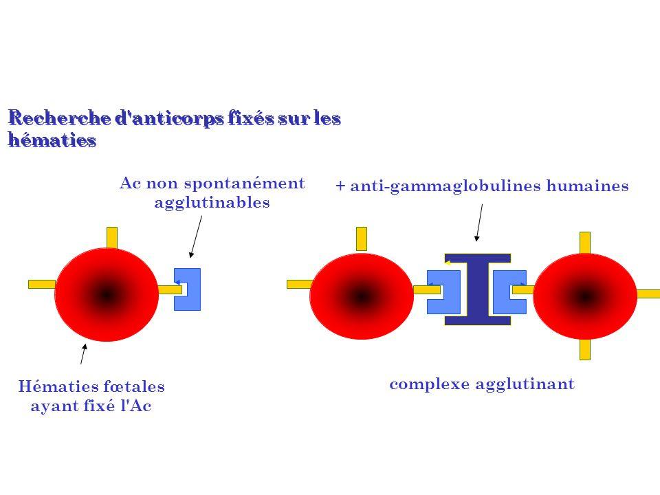 Recherche d'anticorps fixés sur les hématies Ac non spontanément agglutinables Hématies fœtales ayant fixé l'Ac complexe agglutinant + anti-gammaglobu