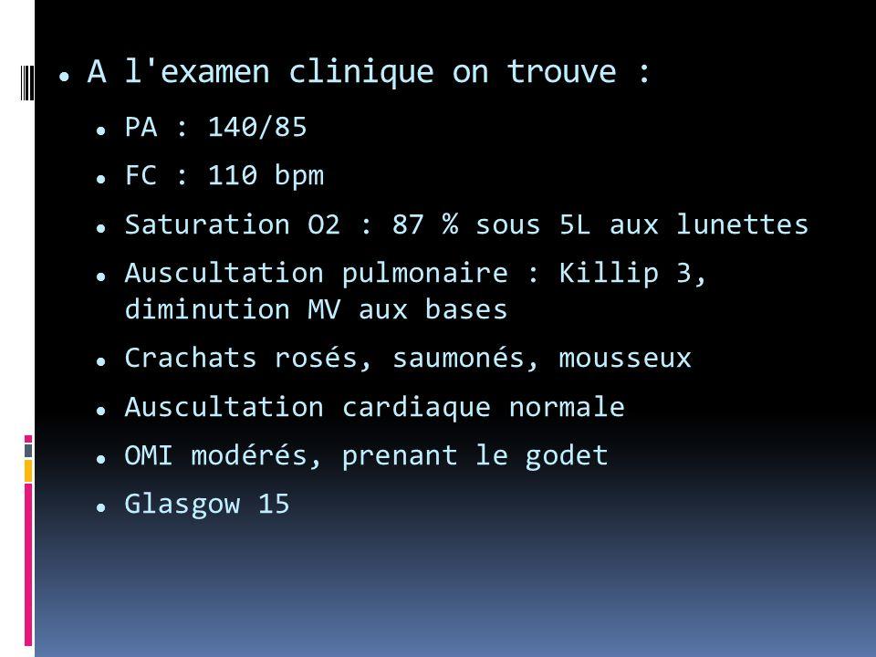 A l'examen clinique on trouve : PA : 140/85 FC : 110 bpm Saturation O2 : 87 % sous 5L aux lunettes Auscultation pulmonaire : Killip 3, diminution MV a