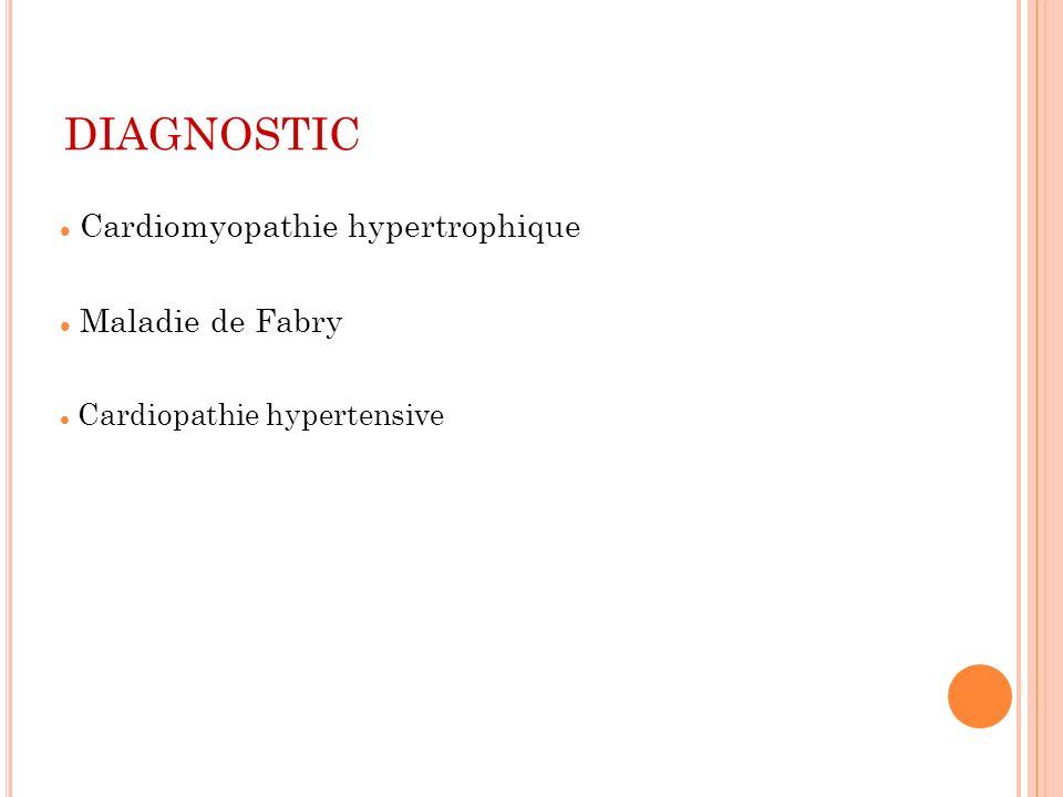 DIAGNOSTIC Cardiomyopathie hypertrophique Maladie de Fabry Cardiopathie hypertensive