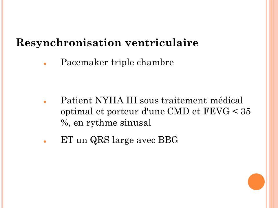 Resynchronisation ventriculaire Pacemaker triple chambre Patient NYHA III sous traitement médical optimal et porteur d'une CMD et FEVG < 35 %, en ryth