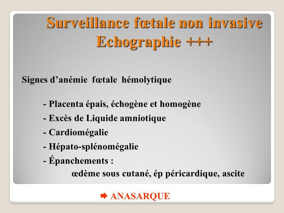 Surveillance fœtale non invasive Echographie +++ Signes danémie fœtale hémolytique - Placenta épais, échogène et homogène - Excès de Liquide amniotiqu