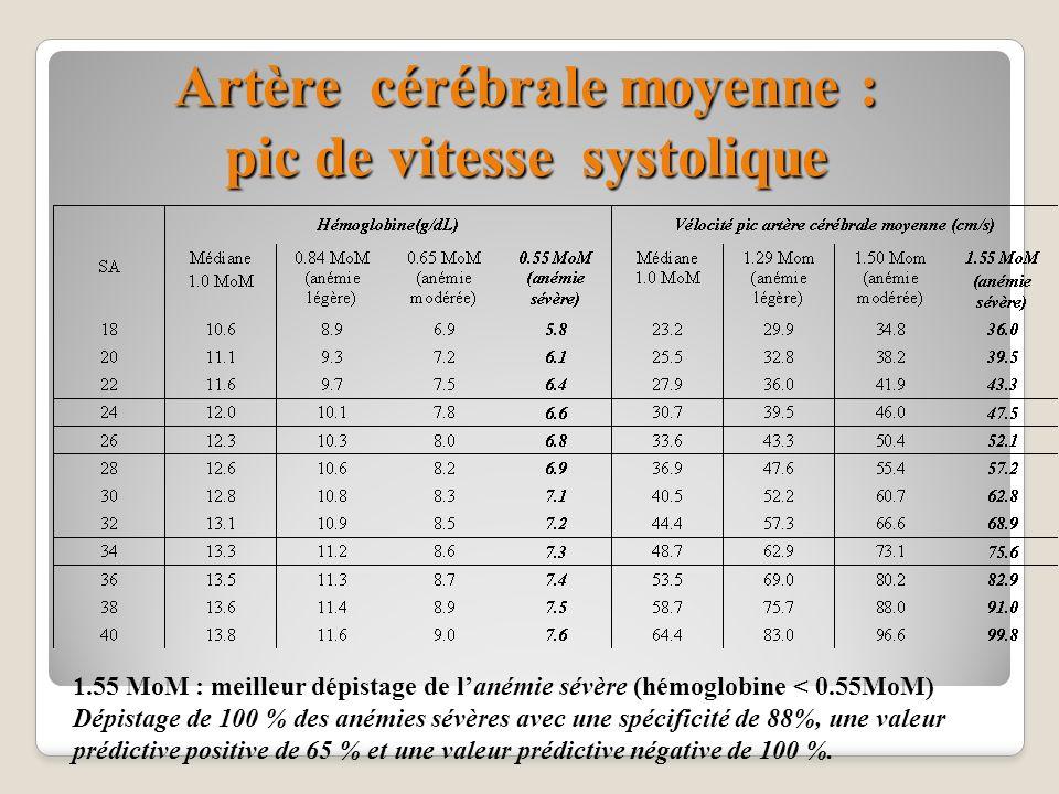 Artère cérébrale moyenne : pic de vitesse systolique 1.55 MoM : meilleur dépistage de lanémie sévère (hémoglobine < 0.55MoM) Dépistage de 100 % des an