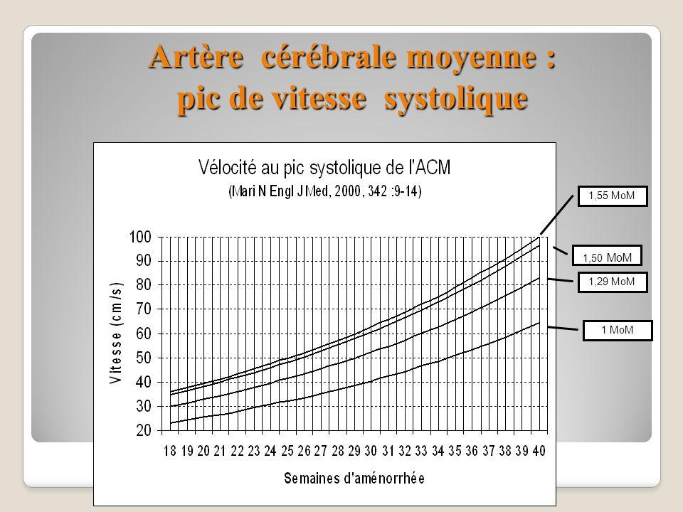 Artère cérébrale moyenne : pic de vitesse systolique 1,55 MoM 1,50 MoM 1,29 MoM 1 MoM