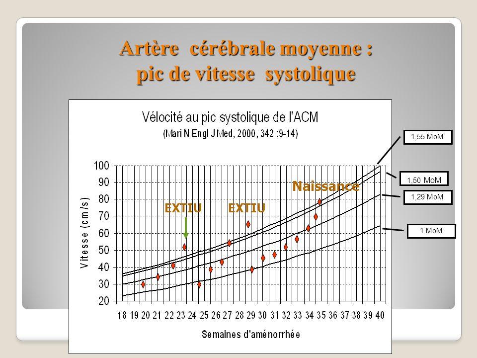 Artère cérébrale moyenne : pic de vitesse systolique 1,55 MoM 1,50 MoM 1,29 MoM 1 MoM EXTIU Naissance