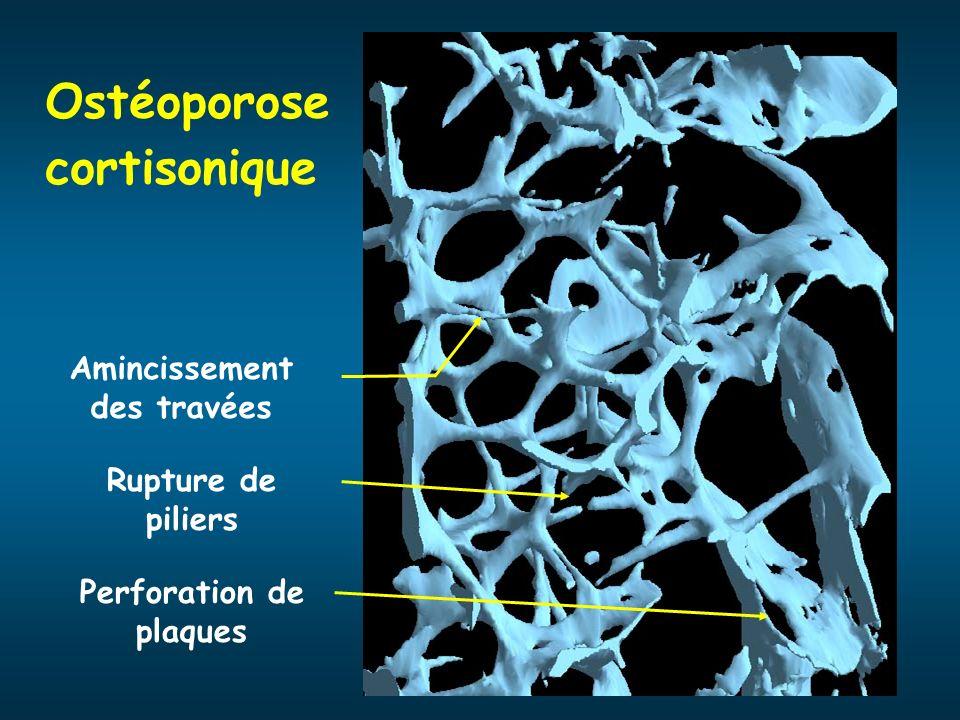 Ostéoporose cortisonique Perforation de plaques Rupture de piliers Amincissement des travées