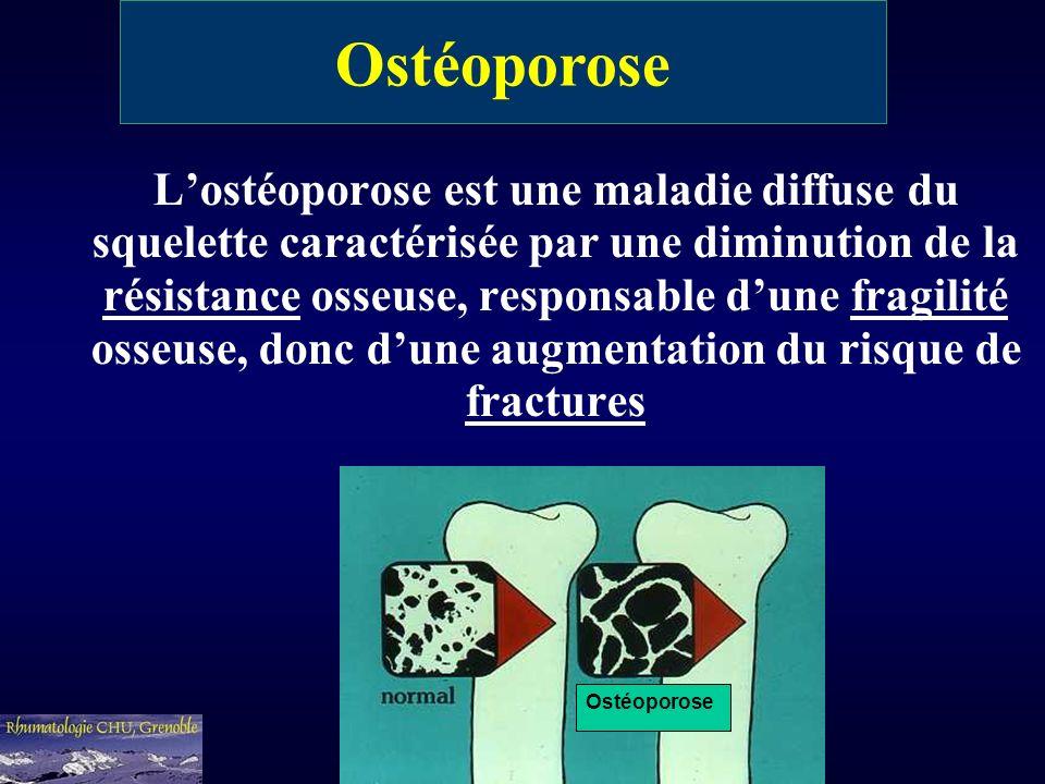 Lostéoporose est une maladie diffuse du squelette caractérisée par une diminution de la résistance osseuse, responsable dune fragilité osseuse, donc d