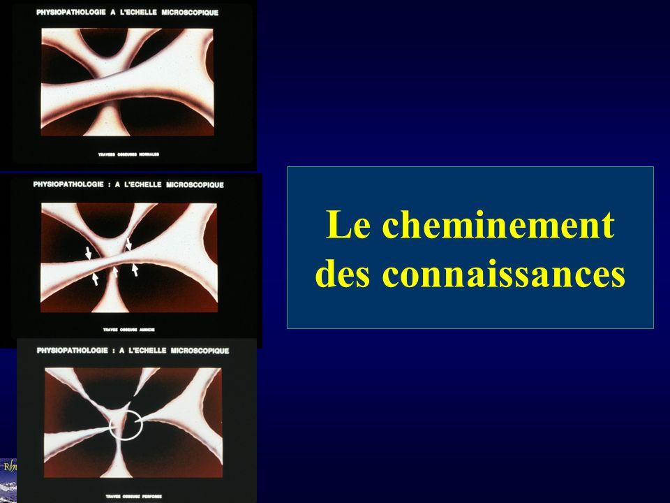 Connaitre le statut osseux 1/ Le remodelage osseux - Histomorphométrie osseuse - Marqueurs biologiques du remodelage: Phosphatases Alcalines, ostéocalcine, CTX