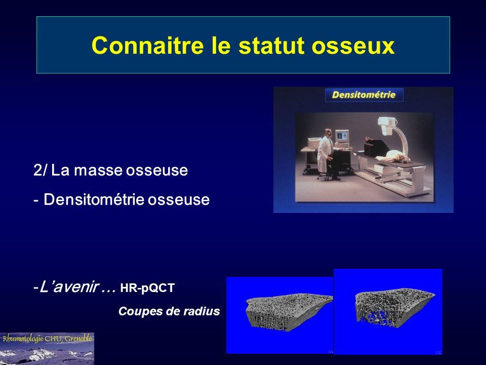 Connaitre le statut osseux 2/ La masse osseuse - Densitométrie osseuse -Lavenir … HR-pQCT Coupes de radius