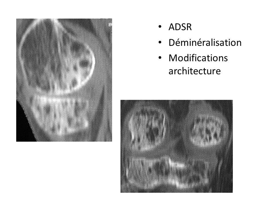 Nerfs et os ADSR Déminéralisation Modifications architecture de plus de 10% en 1 mois