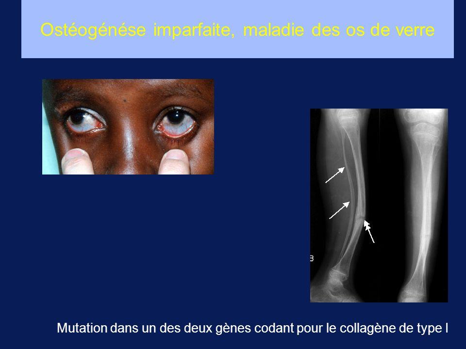 Ostéogénése imparfaite, maladie des os de verre Mutation dans un des deux gènes codant pour le collagène de type I