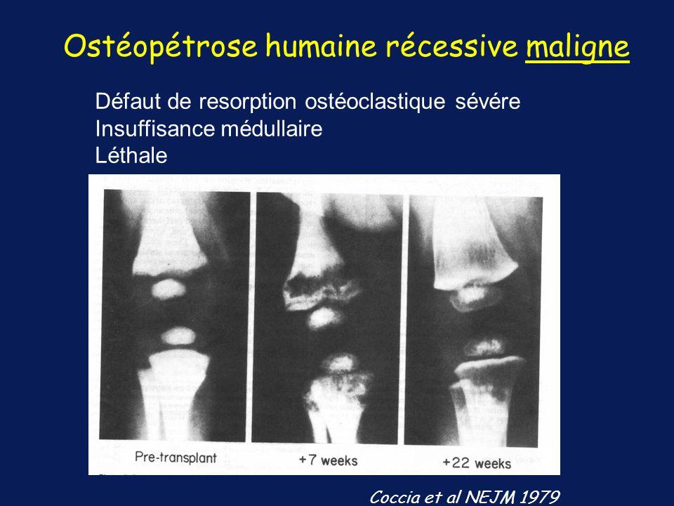 Défaut de resorption ostéoclastique sévére Insuffisance médullaire Léthale Ostéopétrose humaine récessive maligne Coccia et al NEJM 1979