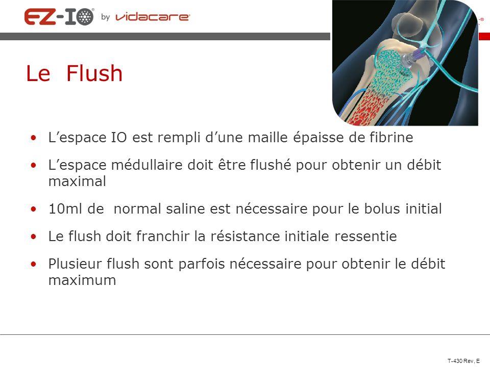 Le Flush Lespace IO est rempli dune maille épaisse de fibrine Lespace médullaire doit être flushé pour obtenir un débit maximal 10ml de normal saline