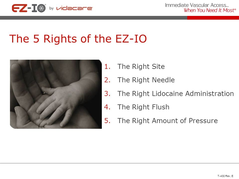 The 5 Rights of the EZ-IO 1.The Right Site 2.The Right Needle 3.The Right Lidocaine Administration 4.The Right Flush 5.The Right Amount of Pressure T-