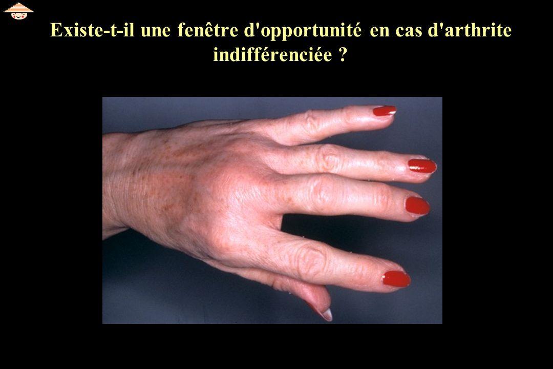Existe-t-il une fenêtre d'opportunité en cas d'arthrite indifférenciée ?