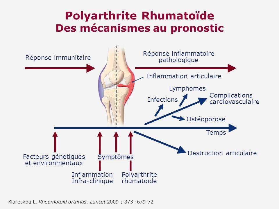Polyarthrite Rhumatoïde Des mécanismes au pronostic Réponse immunitaire Réponse inflammatoire pathologique Inflammation articulaire Infections Lymphom
