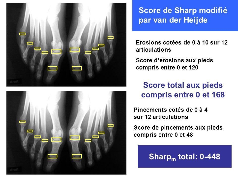 Pincements cotés de 0 à 4 sur 12 articulations Score de pincements aux pieds compris entre 0 et 48 Erosions cotées de 0 à 10 sur 12 articulations Scor