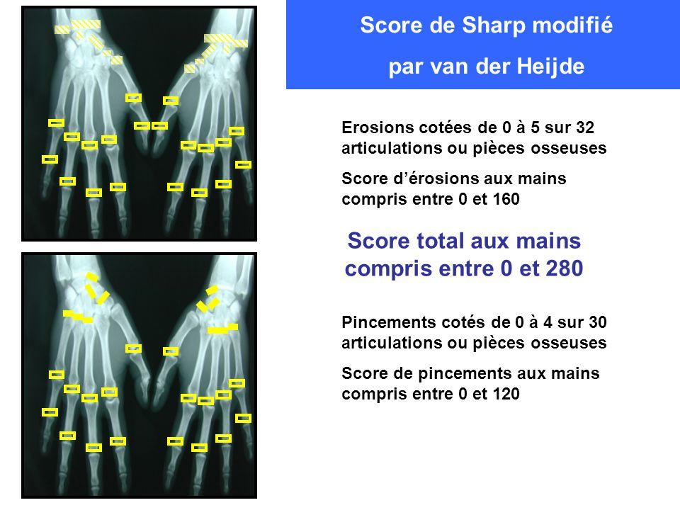 Erosions cotées de 0 à 5 sur 32 articulations ou pièces osseuses Score dérosions aux mains compris entre 0 et 160 Pincements cotés de 0 à 4 sur 30 art