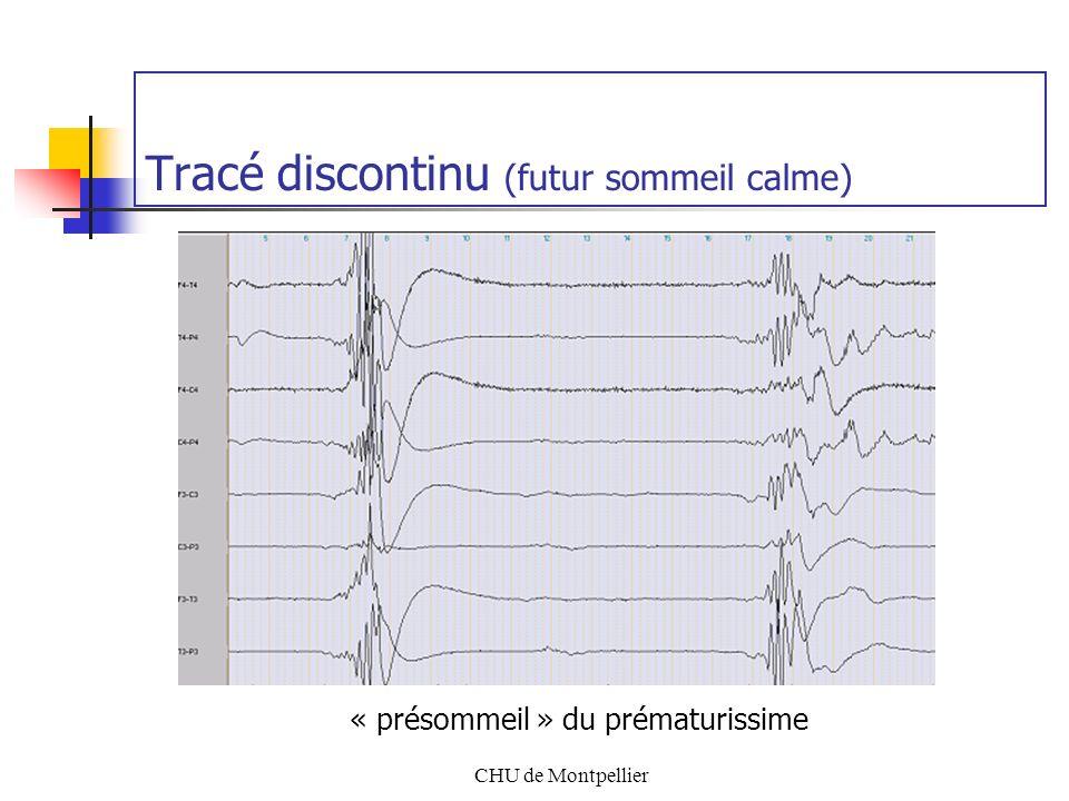 CHU de Montpellier Tracé discontinu (futur sommeil calme) « présommeil » du prématurissime