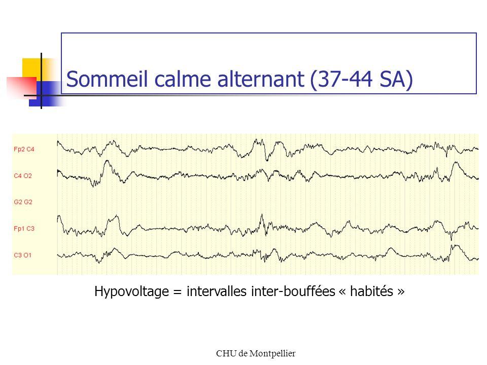 CHU de Montpellier Sommeil calme alternant (37-44 SA) Hypovoltage = intervalles inter-bouffées « habités »