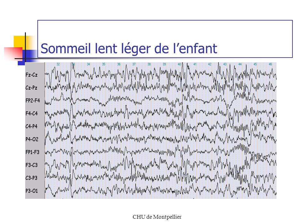 CHU de Montpellier Maturation des rythmes Veille / Sommeil