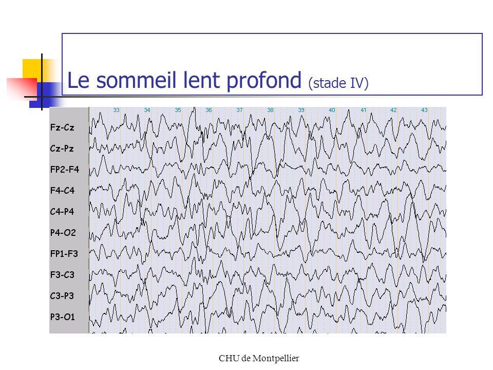 CHU de Montpellier Le sommeil lent profond (stade IV)