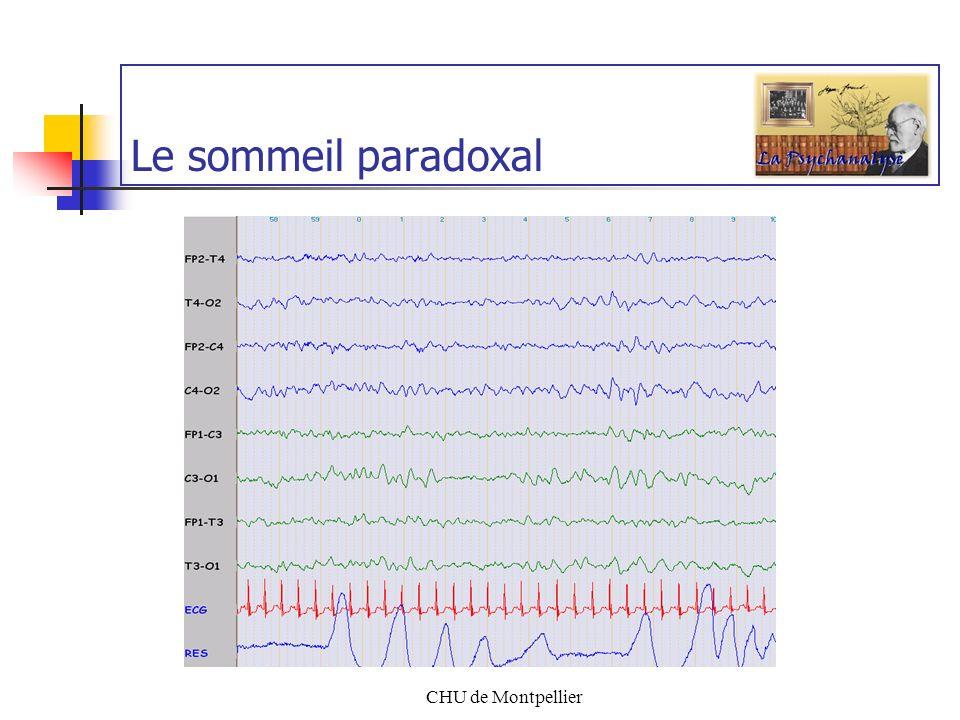 CHU de Montpellier Quest-ce que le (s) sommeil (s) ? M-Josée CHALLAMEL