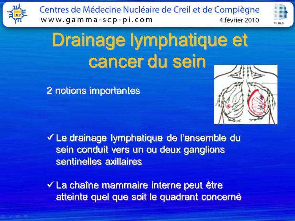 Drainage lymphatique et cancer du sein Drainage lymphatique et cancer du sein 2 notions importantes Le drainage lymphatique de lensemble du sein condu