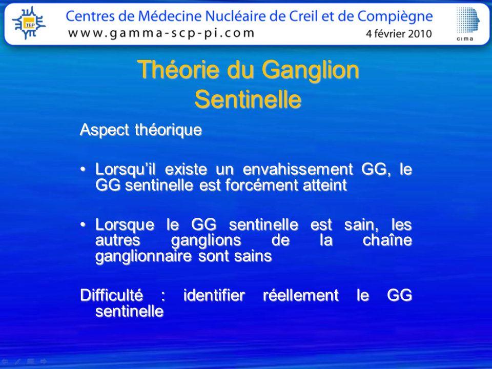Ganglion sentinelle et cancer du sein Aspects Techniques 2 techniques : applicables individuellement ou de manière combinée 1) Méthode colorimétrique 2) Méthode isotopique