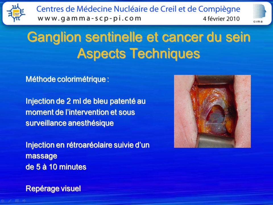 Ganglion sentinelle et cancer du sein Aspects Techniques Méthode colorimétrique : Injection de 2 ml de bleu patenté au moment de lintervention et sous