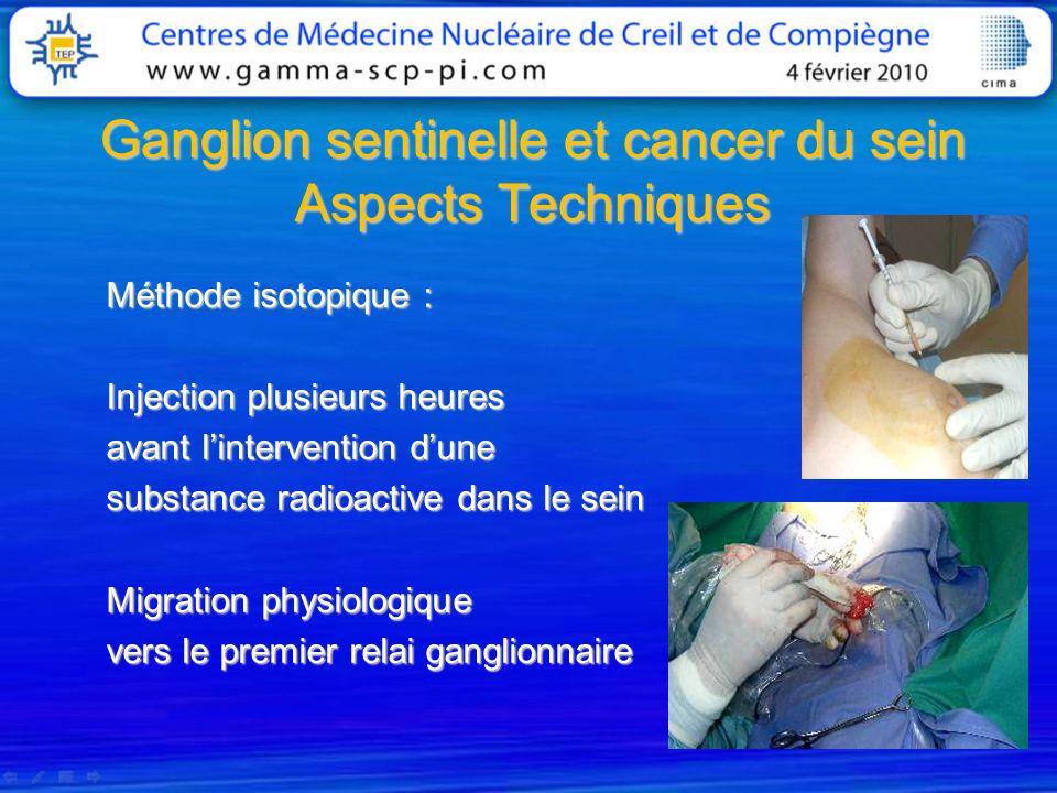 Ganglion sentinelle et cancer du sein Aspects Techniques Méthode isotopique : Injection plusieurs heures avant lintervention dune substance radioactiv