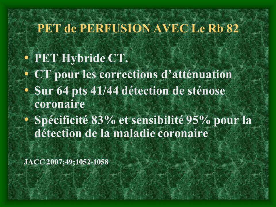 PET de PERFUSION AVEC Le Rb 82 PET Hybride CT. CT pour les corrections datténuation Sur 64 pts 41/44 détection de sténose coronaire Spécificité 83% et