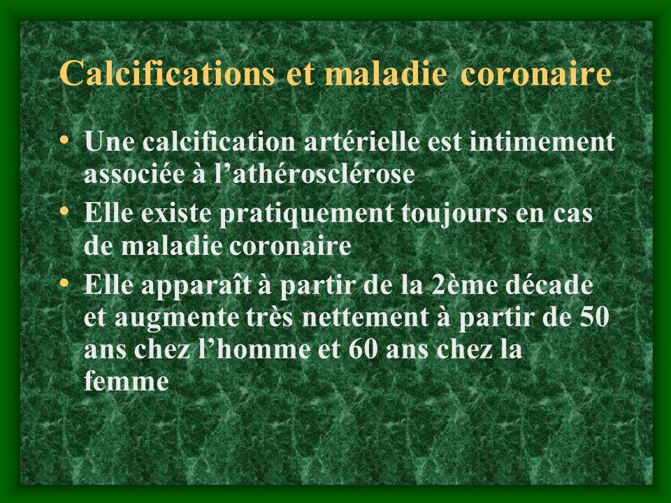 Calcifications et maladie coronaire Une calcification artérielle est intimement associée à lathérosclérose Elle existe pratiquement toujours en cas de