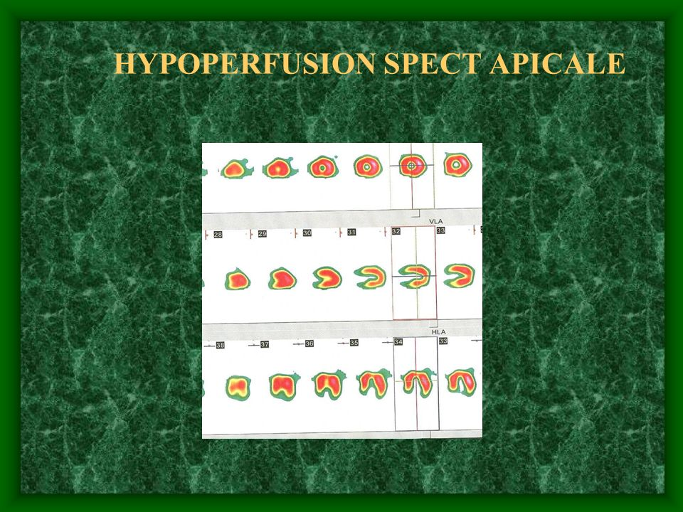 HYPOPERFUSION SPECT APICALE