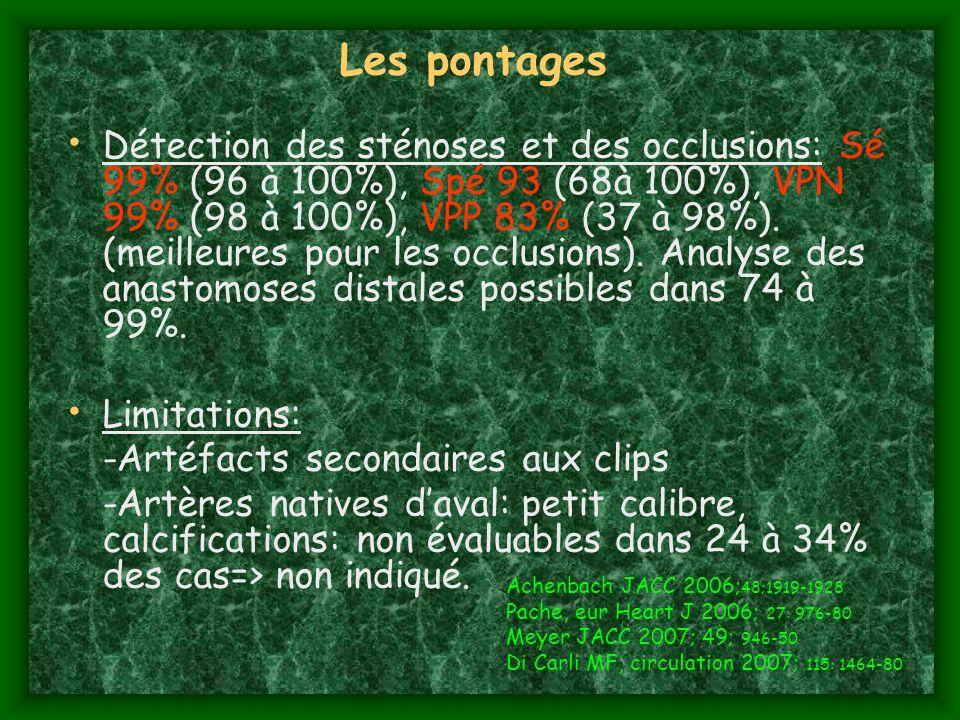 Les pontages Détection des sténoses et des occlusions: Sé 99% (96 à 100%), Spé 93 (68à 100%), VPN 99% (98 à 100%), VPP 83% (37 à 98%). (meilleures pou