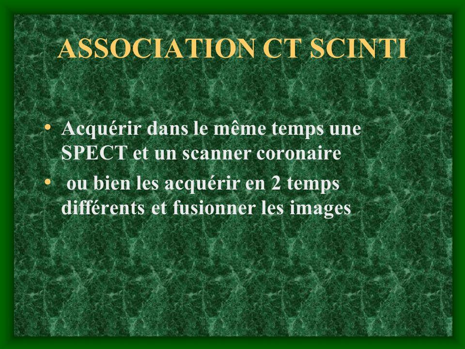 ASSOCIATION CT SCINTI Acquérir dans le même temps une SPECT et un scanner coronaire ou bien les acquérir en 2 temps différents et fusionner les images