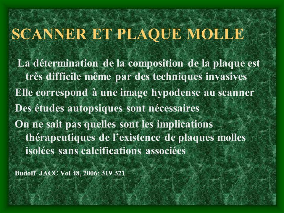 SCANNER ET PLAQUE MOLLE La détermination de la composition de la plaque est très difficile même par des techniques invasives Elle correspond à une ima