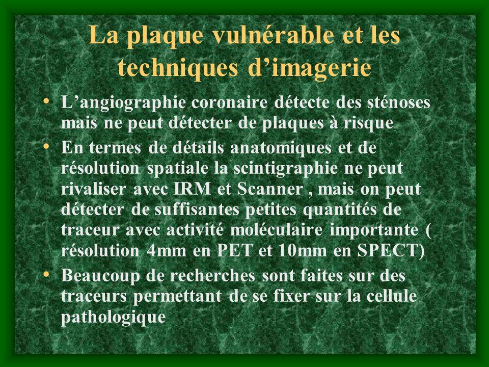 La plaque vulnérable et les techniques dimagerie Langiographie coronaire détecte des sténoses mais ne peut détecter de plaques à risque En termes de d