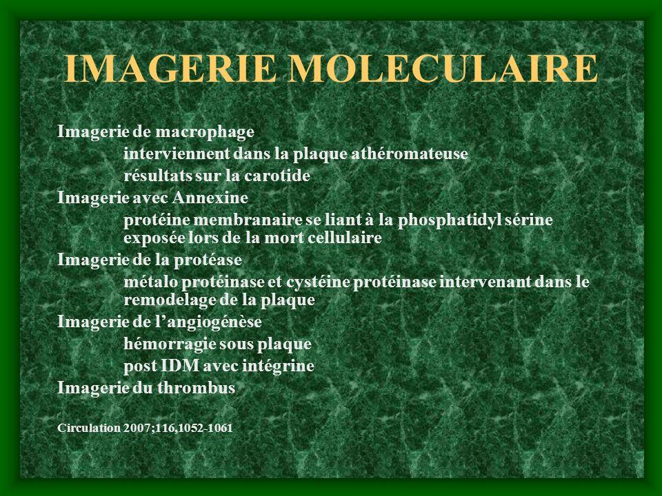 IMAGERIE MOLECULAIRE Imagerie de macrophage interviennent dans la plaque athéromateuse résultats sur la carotide Imagerie avec Annexine protéine membr