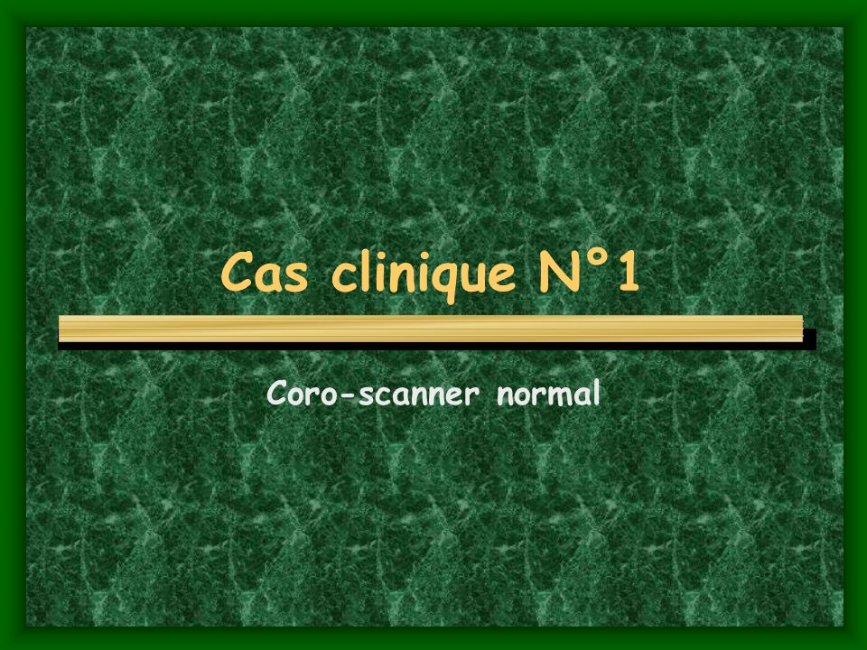 Cas clinique N°1 Coro-scanner normal