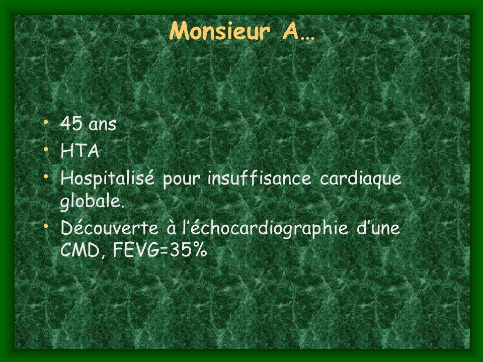 Monsieur A… 45 ans HTA Hospitalisé pour insuffisance cardiaque globale. Découverte à léchocardiographie dune CMD, FEVG=35%