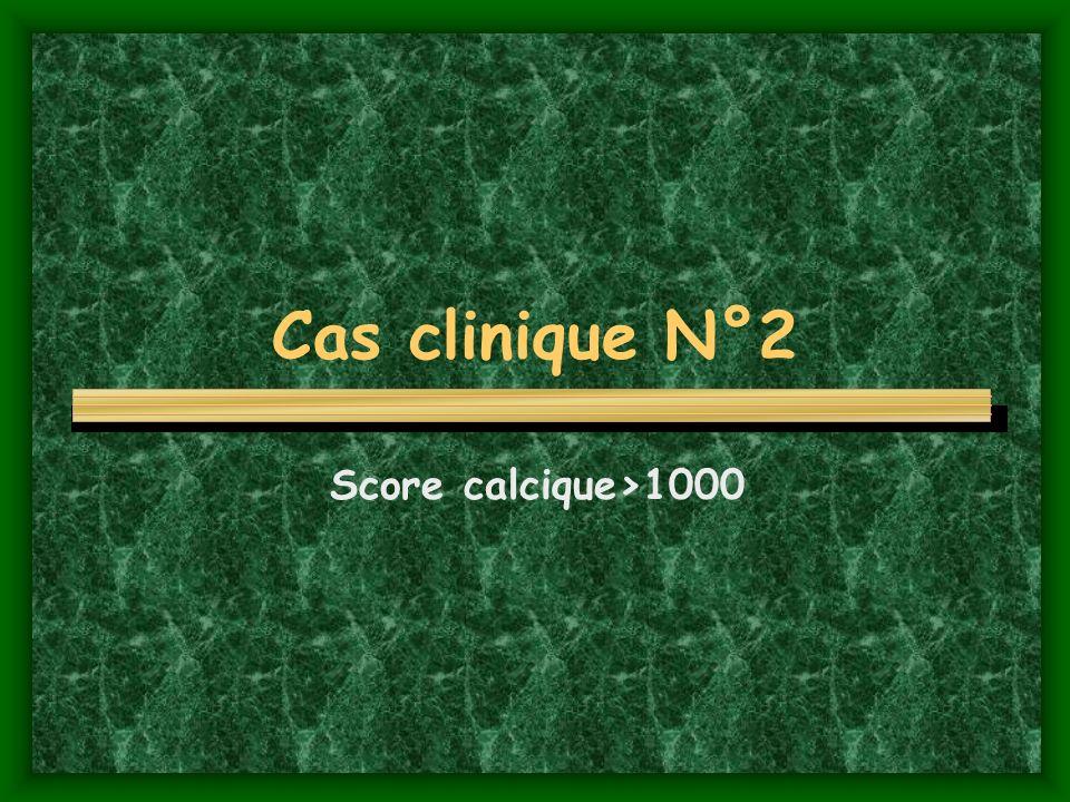 Cas clinique N°2 Score calcique>1000