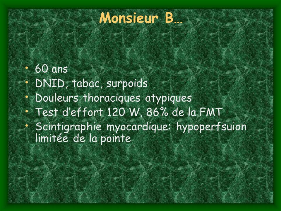 Monsieur B… 60 ans DNID, tabac, surpoids Douleurs thoraciques atypiques Test deffort 120 W, 86% de la FMT Scintigraphie myocardique: hypoperfsuion lim