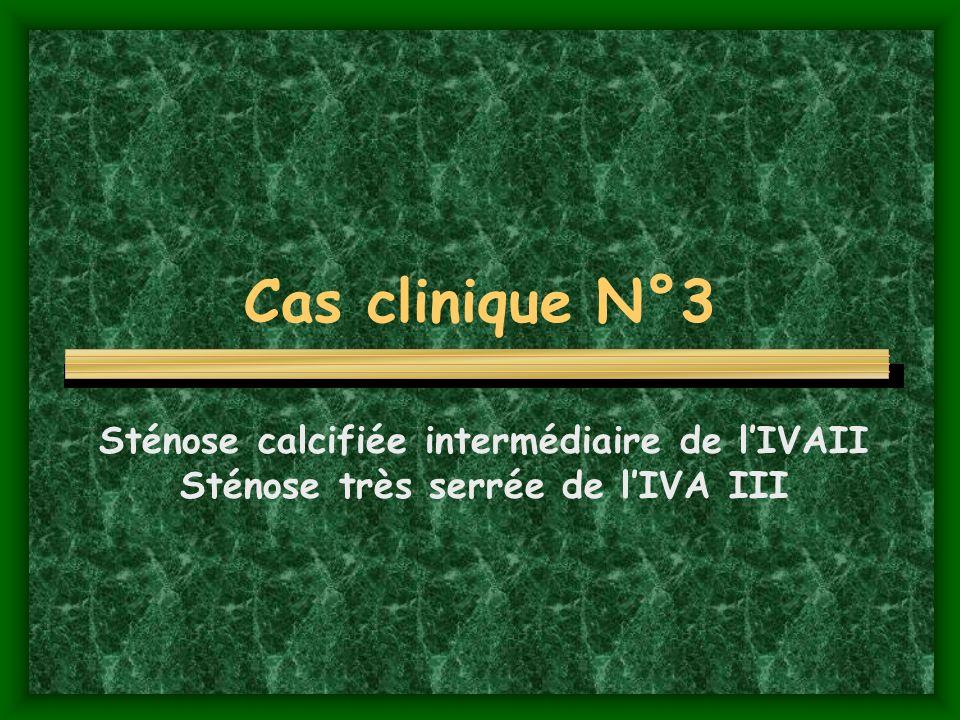 Cas clinique N°3 Sténose calcifiée intermédiaire de lIVAII Sténose très serrée de lIVA III