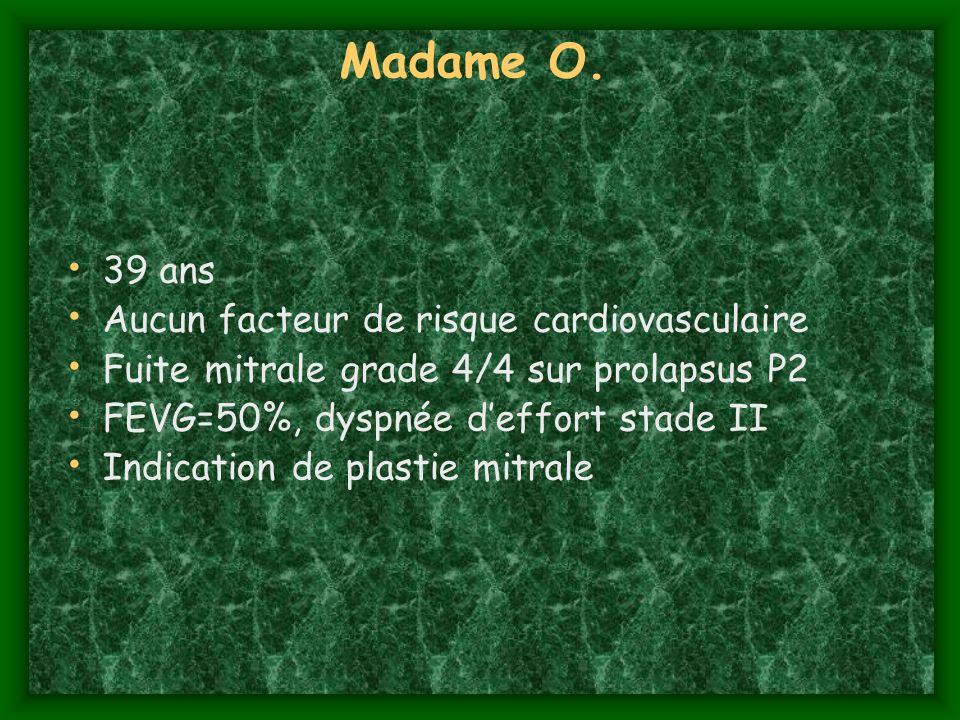 Madame O. 39 ans Aucun facteur de risque cardiovasculaire Fuite mitrale grade 4/4 sur prolapsus P2 FEVG=50%, dyspnée deffort stade II Indication de pl
