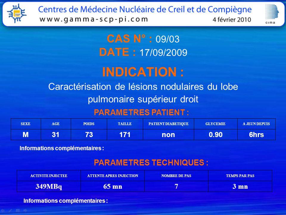 CAS N° : 09/03 DATE : 17/09/2009 INDICATION : Caractérisation de lésions nodulaires du lobe pulmonaire supérieur droit PARAMETRES PATIENT : SEXEAGEPOI